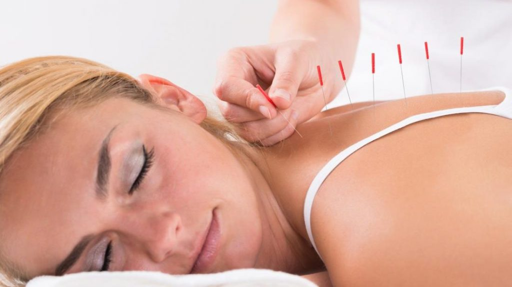 The History Of Acupuncture In China Healthy Net