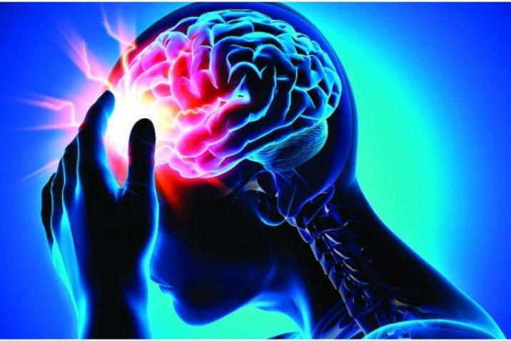 Brain experiencing a stroke
