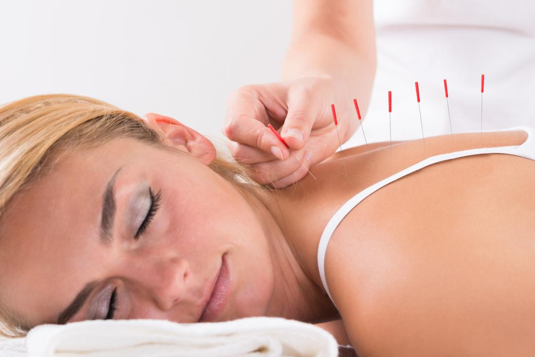 Woman being treated with acupuncture