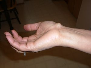 Ganglion cyst on a wrist