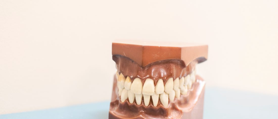 Mold of some straight teeth